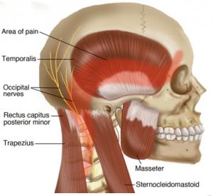 Figure 1 Tension Headaches