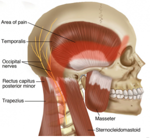 Figure 1 Tension Headaches