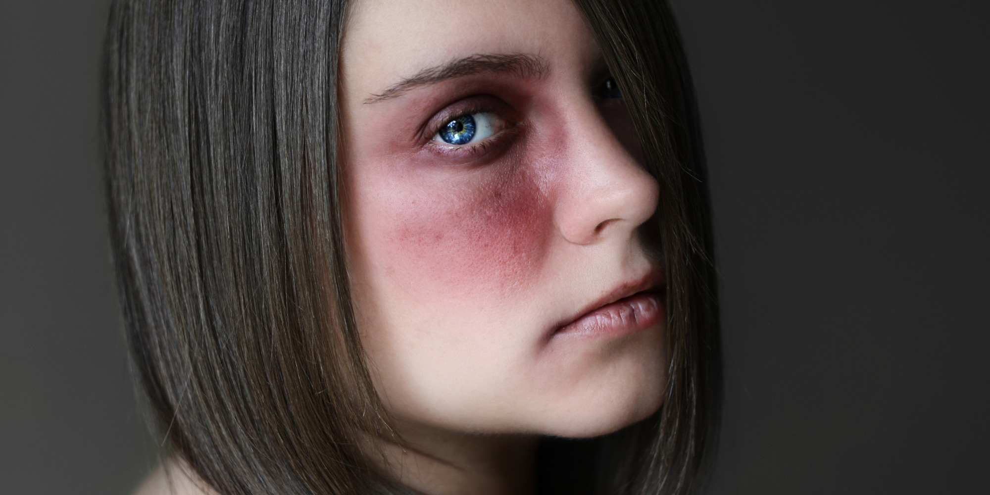 A stranger attacked her in her home Battered Women Pictures