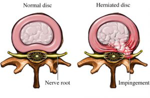 Herniated-disc-lower-back-pain