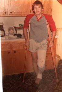Matt Scotton at age 14 after ACL surgery
